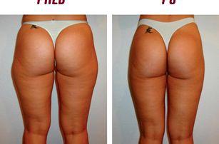 Kryolipolýza 2 partií + lymfodrenáž na hubnutí