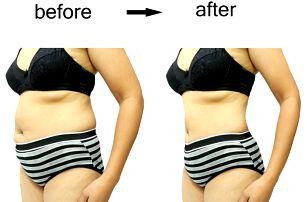 30min. injekční lipolýza - neoperační metoda redukce tuků. Žádná bolest a rekonvalestence