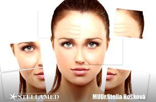Liftingové ošetření obličeje s kyselinou hyaluronovou nebo ošetření problémové pleti
