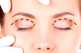 Redukce nadbytečné kůže na víčkách