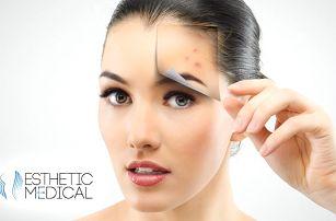 Kosmetické ošetření pleti proti akné, vráskám a pigmentaci v Esthetic Medical v Praze