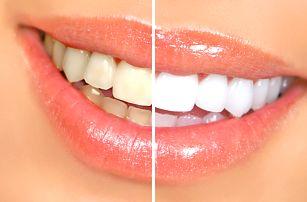 30min. bezperoxidové ordinační bělení zubů laserem