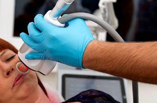 Bezbolestné laserové odstranění 1-5 znamének či bradavic