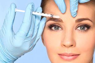 Aplikace botulotoxinu pro vyhlazení vrásek