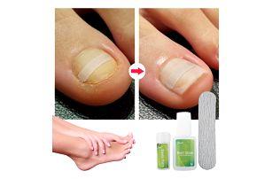 Klipy proti zarůstání nehtů na palci 10 ks