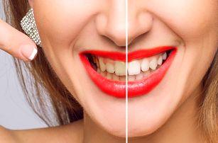 Ordinační bělení zubů lampou Prevdent