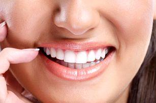 Ordinační bělení zubů peroxidovým gelem