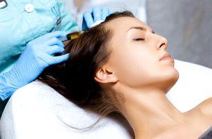 Mezoterapie proti řídnutí vlasů: 1 až 5 ošetření