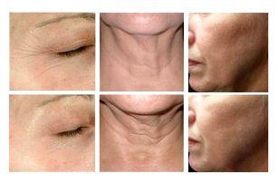 Ošetření obličeje a vrchní části krku pomocí procedury Hifu Ultheralift